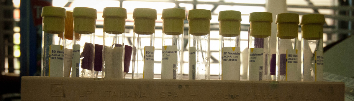 A photo of HIV study test tubes